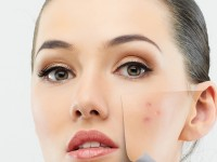 Tips-to-deal-with-acne